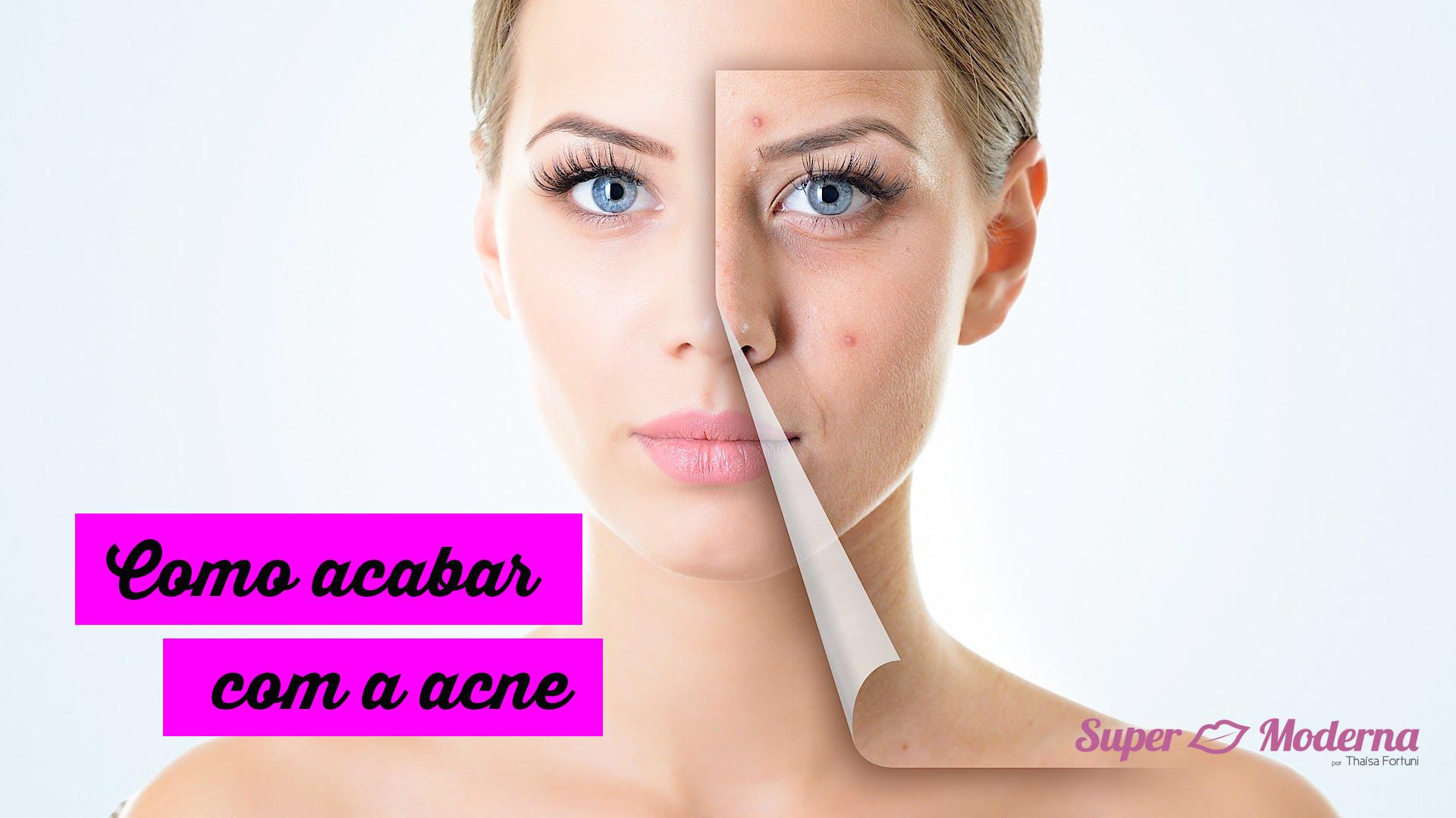 Como acabar com a acne